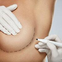 Chirurgia estetica seno